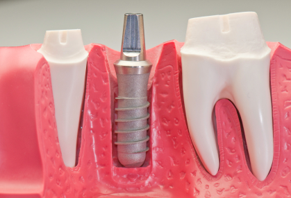 A digram that shows how a dental implant and the surrounding teeth are being prepared for crowns.